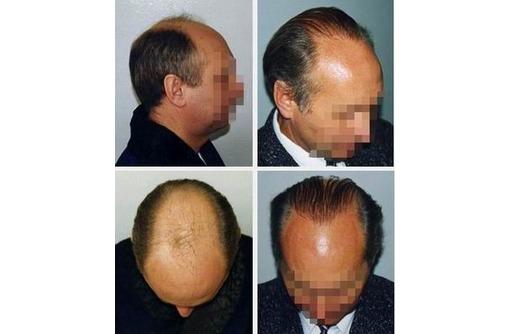 Пересадка волос. Трансплантация собственных волос Крым., фото — «Реклама Симферополя»