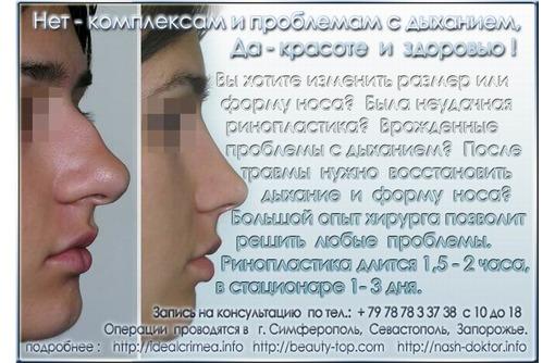 Проблемы с носом? - Ринопластика и нет проблем:)  Цены по прайсу., фото — «Реклама Симферополя»