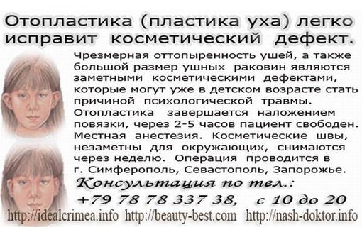 Пластика уха (Отопластика) легко исправит косметический дефект. Цена по прайсу., фото — «Реклама Симферополя»