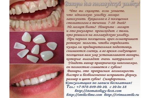 Виниры и голливудская улыбка легко, фото — «Реклама Симферополя»