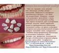 Виниры и голливудская улыбка легко - Стоматология в Симферополе