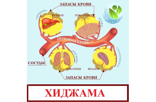 Хиджама. Лечебное очищение лимфы., фото — «Реклама Севастополя»