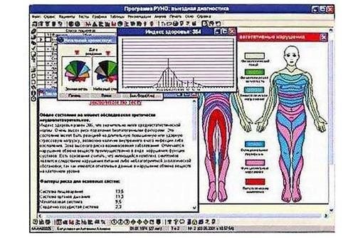 Диагностика организма. Оберон (Метатрон). Дианел., фото — «Реклама Симферополя»