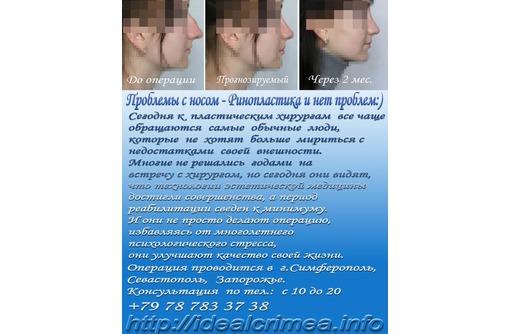 Ринопластика - изменение формы и размера носа. Крым, Севастополь, фото — «Реклама Симферополя»