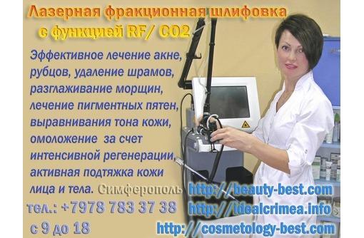 Лучшее предложение на Фракционную шлифовку. Симферополь, фото — «Реклама Симферополя»