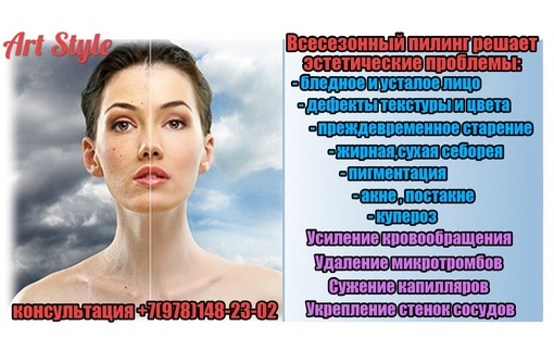 Ультразвуковая чистка лица в Севастополе,салон красоты Арт Стайл.Косметология., фото — «Реклама Севастополя»