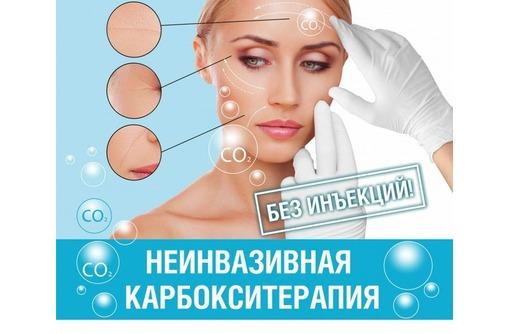 Неинвазивная карбокситерапия в Севастополе на Шевченко в салоне красоты Арт Стайл на Потапова16, фото — «Реклама Севастополя»