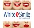 Косметическое отбеливание зубов от 1500р., фото — «Реклама Севастополя»