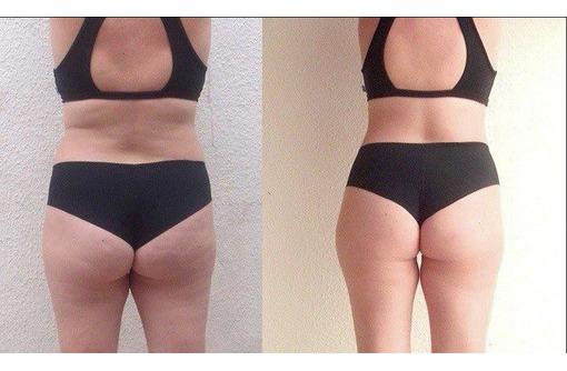 Антицеллюлитный массаж,для снижения веса., фото — «Реклама Симферополя»