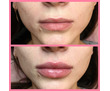 Увеличение губ, Контурная пластика Севастополь, фото — «Реклама Севастополя»