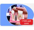 Имплантация зубов в Краснодаре - Стоматология в Краснодаре