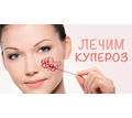Профилактика и лечение купероза - Косметологические услуги, татуаж в Краснодаре