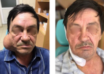 Краснодарские врачи удалили огромную опухоль с лица мужчины, фото — «Рекламы Новороссийска»