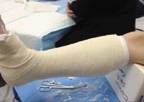 Полицейские сломали ногу инвалиду, которого приняли за вора в Краснодаре, фото — «Рекламы Краснодара»