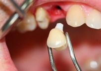Category_vred-ot-implantov-zubov-otzyvy-i-protivopokazaniia-k-ikh-ustanovke