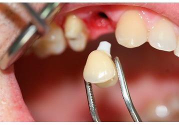 Где можно сделать имплантацию зубов в Краснодаре , фото — «Реклама Краснодара»