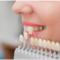 Micro_protezirovanie-zubov