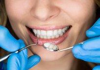 Category_implantaciya-zubov-na-chto-obratit-vnimanie