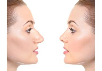 Ринопластика в Сочи: где можно исправить форму носа, фото — «Реклама Сочи»