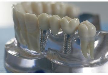 Протезирование зубов в Крымске: куда братиться, фото — «Реклама Крымска»