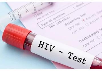 Анализ на ВИЧ в Сочи: где можно сдать, фото — «Реклама Сочи»