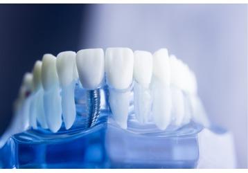 Имплантация зубов в Анапе: где делают, фото — «Реклама Анапы»