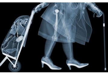 Где можно сделать рентген в Армавире, фото — «Реклама Армавира»