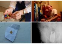 """""""Я проходила с инородным телом в десне 10 лет!"""": необычные предметы, которые медики доставали из крымчан, фото — «Рекламы Щелкино»"""