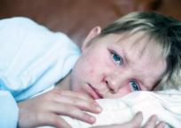 В Севастополе началась массовая вакцинация от кори, фото — «Рекламы Севастополя»