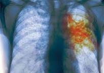 Category_tuberkulez