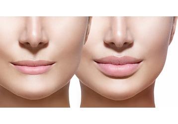 Где можно увеличить губы в Севастополе: клиники, контакты, фото — «Реклама Севастополя»