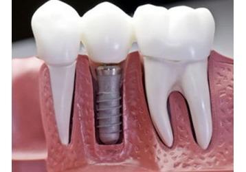 Имплантация зубов в Ялте – где можно сделать, фото — «Реклама Крыма»
