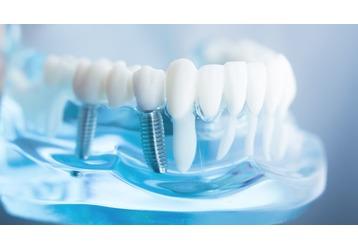 Имплантация зубов в Севастополе: где делают, фото — «Реклама Севастополя»