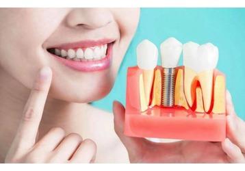 Где можно сделать имплантацию зубов в Феодосии, фото — «Реклама Феодосии»