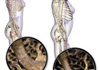 Category_osteoporoz